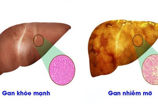 Gan nhiễm mỡ là gì? Những dấu hiệu nhận biết ra bệnh gan nhiễm mỡ
