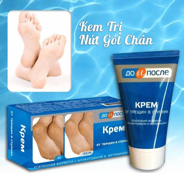 kem-tri-nut-got-chan-3
