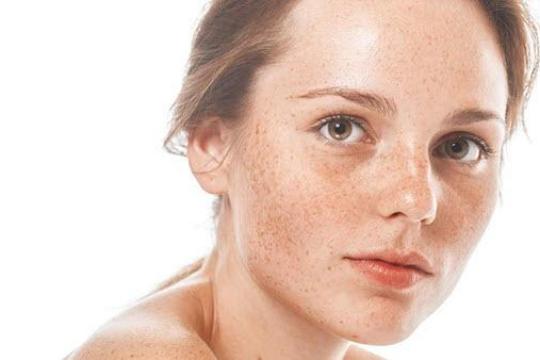 Review top 5 loại kem trị tàn nhang giúp cải thiện cho làn da của bạn